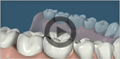 thesis dental implants Our office for treatment with dental implants the initial examination revealed that her denti-tion was in a desolate state, including hopeless.